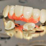 Biokompatibler Zahnersatz
