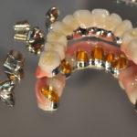 Teleskopierender Zahnersatz