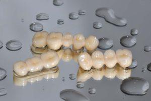 Zirkonkronen Zahnkunstwerk
