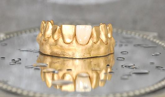 Zahnkunstwerk-Herbeder-Krone